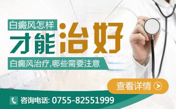 深圳市治白癫疯那个医院好
