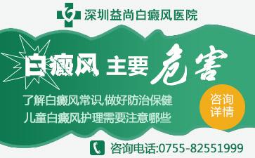 深圳白癜风医院哪家好介绍儿童白斑的辅助治疗有哪些