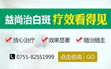 深圳白癜风医院讲解青少年的白斑的原因有哪些