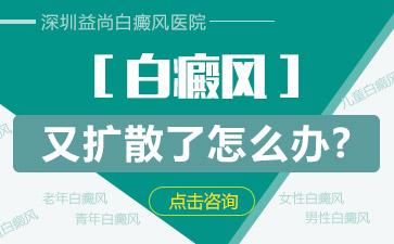 深圳宝安区哪个医院看白斑最好白斑患者要怎么做才能避免病情恶化