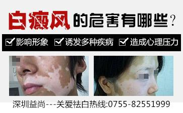 深圳益尚门诊部引发女性白癜风的因素有哪些