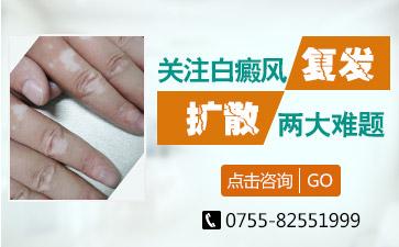 深圳哪个医院治疗白癜风讲解白癜风出现痒感的原因有哪些
